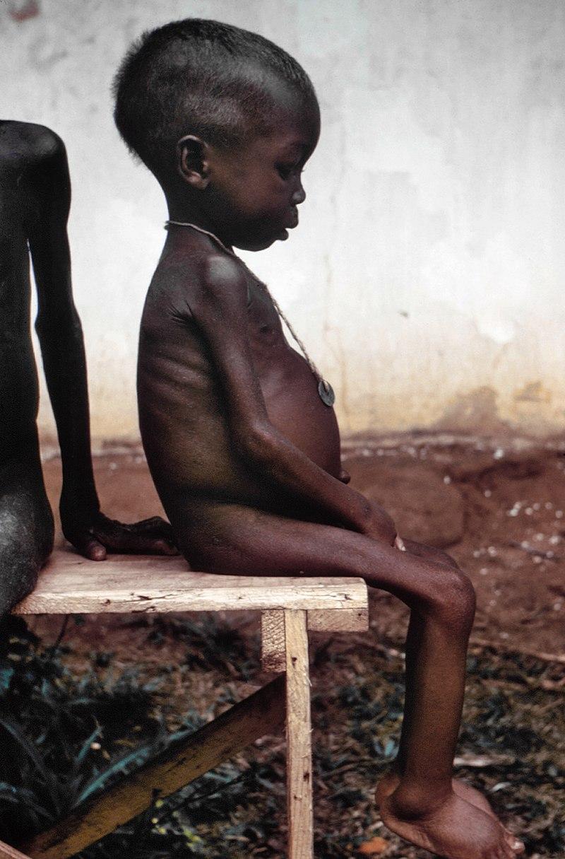 Hladomor